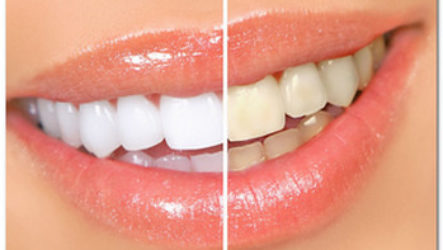 Народные средства для отбеливания зубов