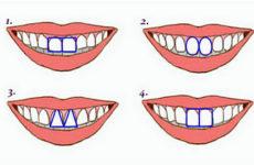 Физиогномика. Зубы и черты характера.