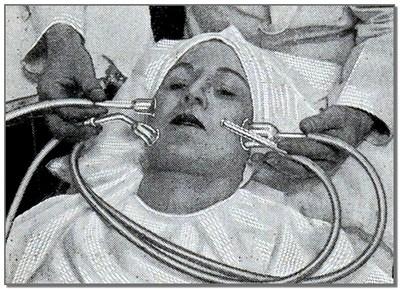 Косметологическая процедура прошлого