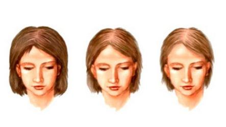 Выпадение волос — причины и лечение