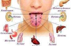 Язык, как зеркало организма