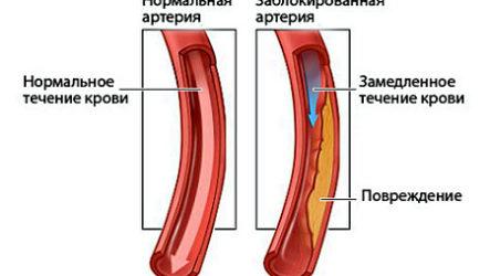 Нормальный уровень холестерина в крови
